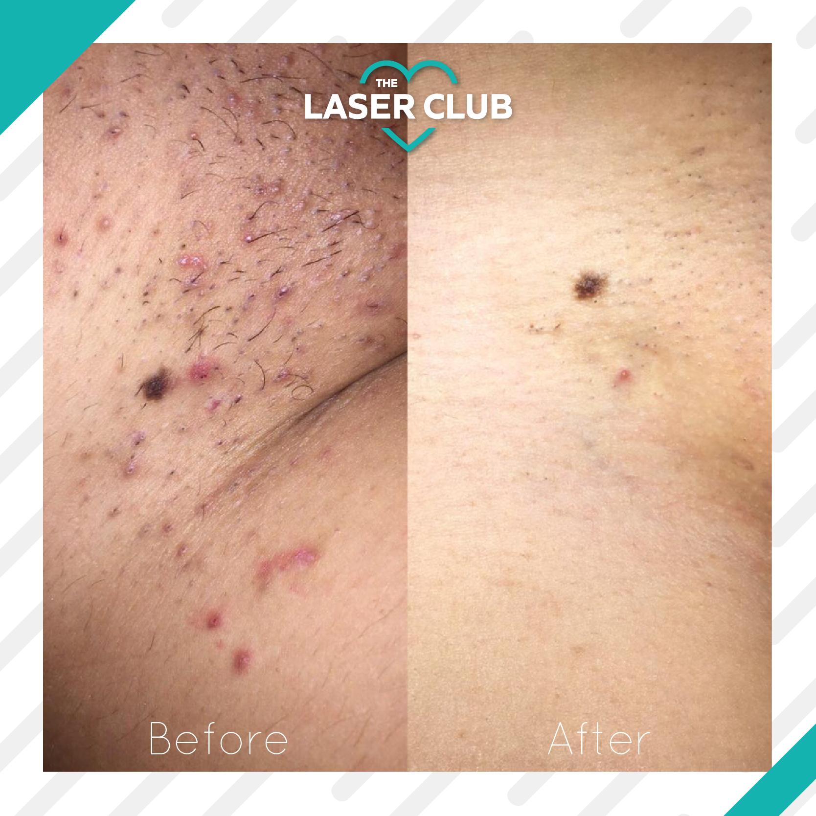 Laser Club Instagram Feed-04
