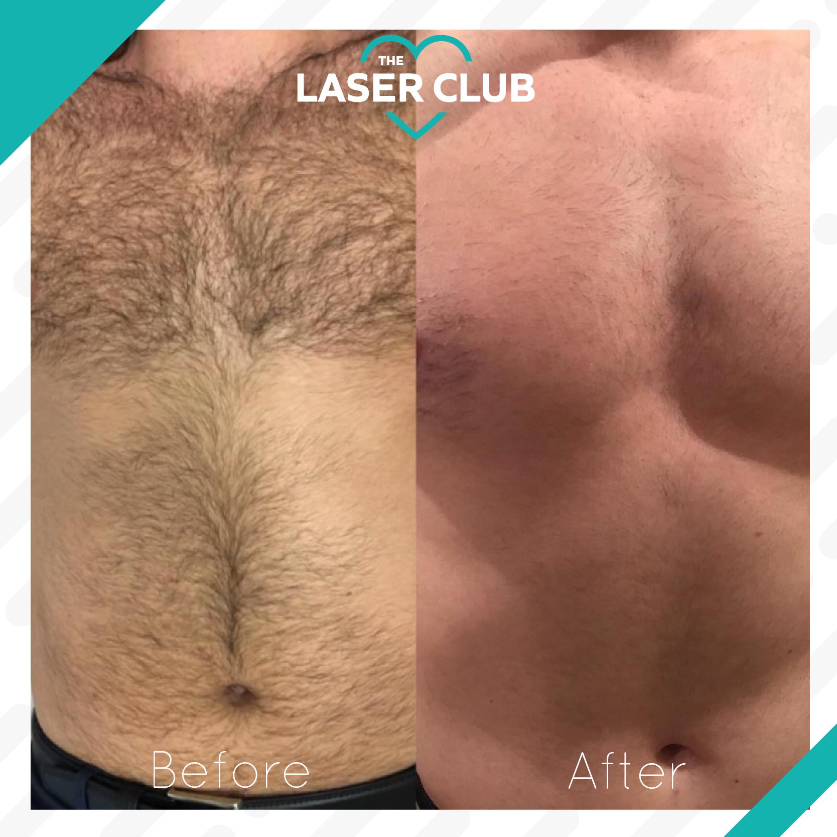 Laser Club feed10-10