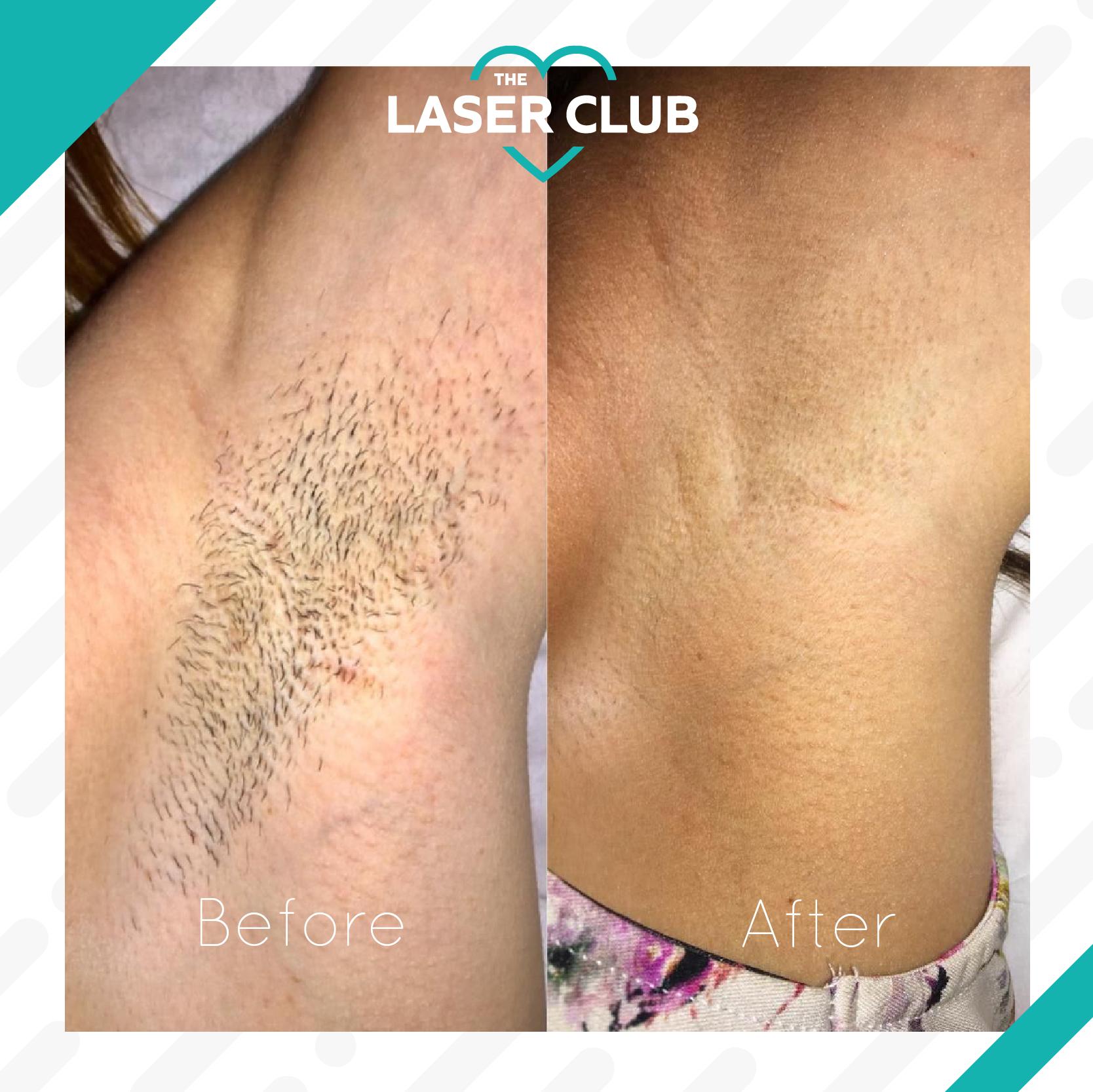 Laser Club feed12-10