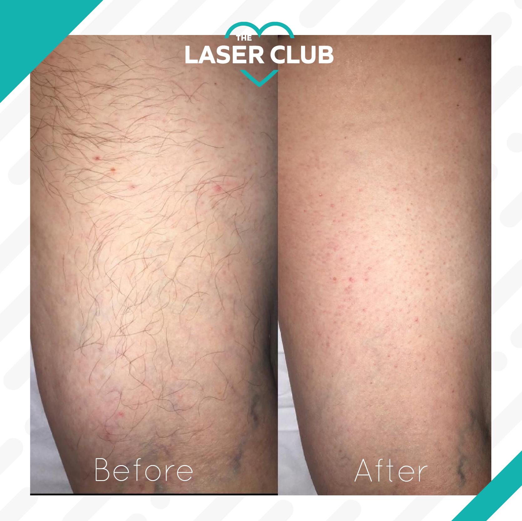 Laser Club feed13-10